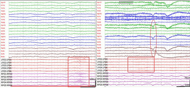 Spindle-like graphoelements in the FO leads during wakefulness. (High pass filter 0.5Hz low pass filter 70Hz). Runs of bi-, or unilateral, spindle-shape sharp elements with 11-12Hz frequency appeared in the FO leads on both sides, predominantly during NREM sleep (left side, marked with rectangle). In wakefulness, variable length (1s-15s) beta spindles with 15-16Hz frequency were often seen in the FO leads, preceding eye movements, blinking or other muscle activity (right side, marked by rectangle). The circle demonstrates the EEG artefact of blinking.