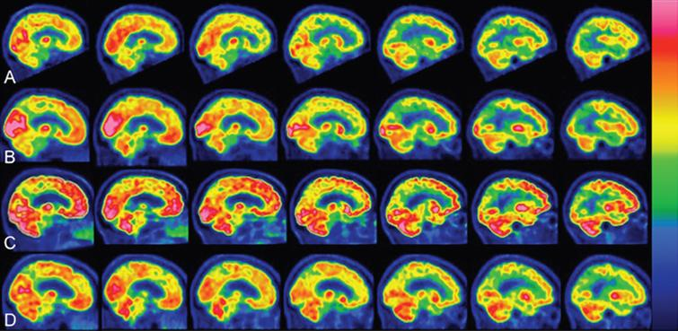18 FDG PET-scan sagittal sections. Matching of representative sagittal sections showed a significant increase in the brain metabolism during NGF-treatment (10 μl NGF daily). Flame scale indicates FDG use/100g tissue/min. Red color indicates more FDG-use than blue. A) Before treatment, note FDG-uptake reduction in the following brain areas: frontotemporal lobes left>right, basal ganglia, cerebellum. B) After 3 months of NGF-treatment (5 μl NGF per nostril daily), note a significant increase in FDG-uptake (p< 0.05) in the occipital and frontotemporal lobes. C) After 1 year of NGF-treatment (5 μl NGF per nostril daily), the PET scans showed further enhancement of FDG-uptake (p< 0.05) in the same brain areas as in (B) and also in paraolfactory area, posterior cortex of cingulate gyrus, cerebellum. D)After 1 year of stopping NGF-treatment, the brain areas showed a significant reduction in global activities.
