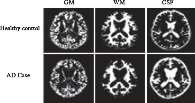 Segmentation results of a normal individual and an AD patient. AD, Alzheimer's disease; GM, gray matter; WM, white matter; CSF, cerebrospinal fluid.