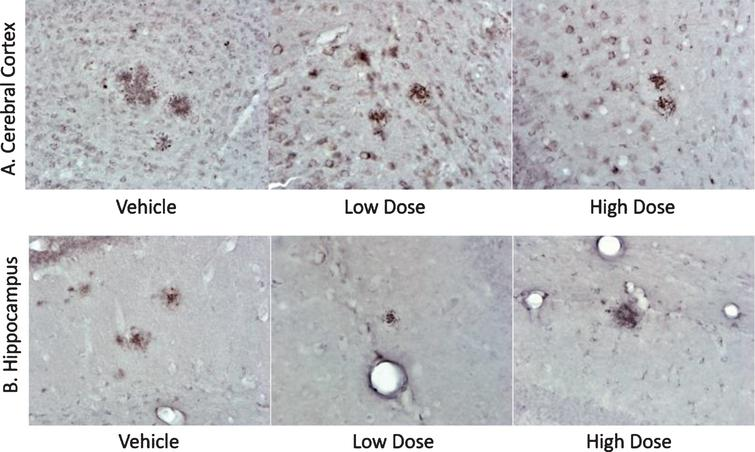 Histology sections of AD mice from efficacy study. Immunohistology sections of cerebral cortices (A) and hippocampi (B) from experimental mice as indicated representing amyloid plaques (dark red spots, at 40x magnification). The cumulative data representing total number of plaques and the surface area are presented in Table 2.