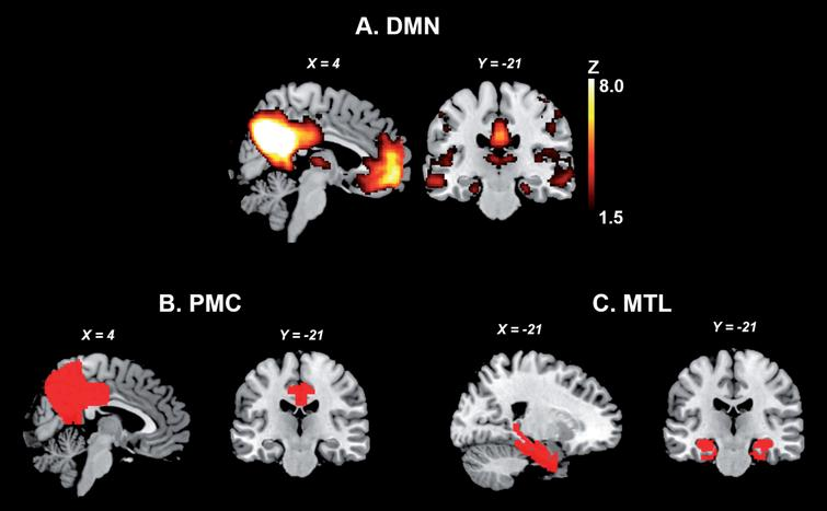 The MTL and PMC of the DMN. A. Publicly available spatial map of the DMN derived from an independent component analysis on resting-state fMRI data of 36 healthy subjects (https://www.fmrib.ox.ac.uk/datasets/brainmap+rsns/). B and C show the location of the PMC and MTL, respectively (Harvard-Oxford Cortical and Subcortical Atlas). DMN, default mode network; MTL, medial temporal lobes; PMC, parietomedial cortex.