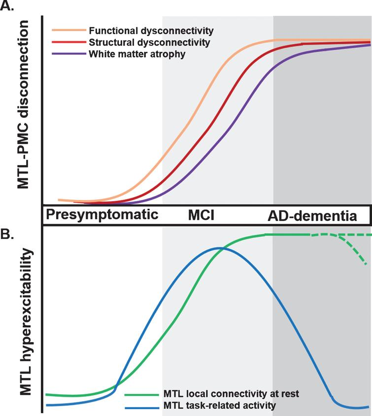 Proposed trajectory for MTL-PMC disconnection and MTL circuit hyperexcitability across clinical stages of AD. A) MTL-PMC disconnection progressively increases across the clinical AD trajectory (indicated by shades of grey), starting with functional (orange curve) and followed by structural dysconnectivity (red) reflecting dysfunctional communication between both regions but not yet extensive neuronal death and degeneration at early AD stages. Functional and structural dysconnectivity are eventually followed by disconnection measured through white matter atrophy reflecting overt degeneration (violet). B) In parallel to ongoing MTL-PMC disconnection, local MTL functional hyperexcitability takes place across stages of AD. On the one hand, task-related MTL activity follows an inverse-U-shaped activation trajectory, with hyperactivity patterns in early MCI followed by hypoactivity at later disease stages (blue hyperbola). On the other hand, during resting-state conditions the MTL is characterized by progressive local hyperconnectivity across clinical AD stages (green curve). It is currently unknown whether at final stages, MTL hyperconnectivity is sustained or eventually drops due to ongoing MTL degeneration (shaded green lines). AD, Alzheimer's disease; MCI, mild cognitive impairment; MTL, medial temporal lobes; PMC, parietomedial cortex.