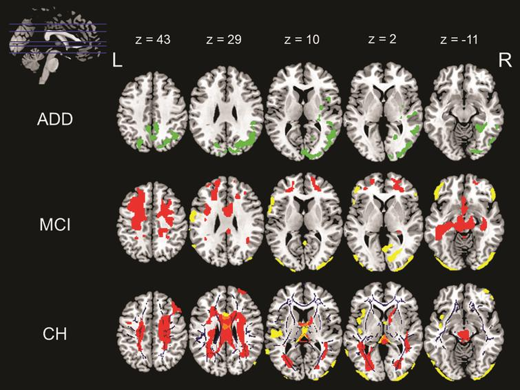 Associations with waist circumference across the three diagnostic groups namely ADD, MCI, and CH. The above image shows various positive and negative correlations between different neuroimaging indices and waist circumference. The image in the top left corner shows the axial slices chosen in the image and the MNI coordinates for these slices are listed in the same row. The slices going from top to bottom have been arranged from left to right across the three rows of images. These MNI co-ordinates also correspond to the column that they represent. First row (ADD): The green overlay represents a positive correlation found between GMV and WC in ADD patients. Middle row (MCI): The yellow overlay represents a negative correlation between GMV and WC and the red overlay represents a negative correlation between CBF and WC in MCI patients. Last row (CH): The yellow overlay represents a negative correlation between GMV and WC, the red overlay represents a negative correlation between CBF and WC and the blue overlay represents a negative correlation between WMI and WC in CH.