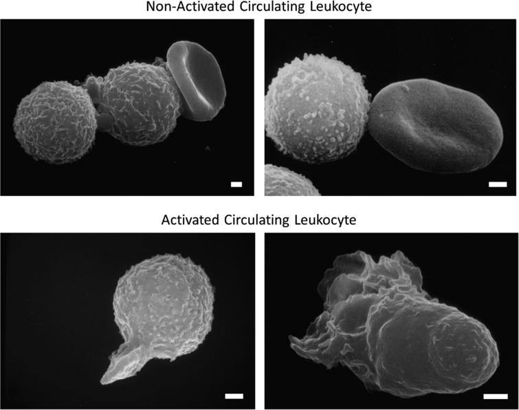 Scanning electron micrograph of fresh, untreated, circulating leukocytes (predominantly neutrophils and monocytes) in venous blood derived from the free circulation. Cells in the top row have low levels of pseudoformation and represent a non-activated (passive) state, and in bottom row exhibit an activated state with extensive pseudopods. Leukocytes of non-symptomatic healthy controls are rare in non-symptomatic control individuals but occur more frequently in circulating leukocytes of individuals with disease symptoms. Activation of circulating leukocytes may be accompanied by expression of membrane adhesion molecules, endothelial adhesion, oxygen free radical formation, degranulation, depletion glycocalyx, reduced response to fluid shear stress and other forms of cell activity. Length of bars is 1 μm.