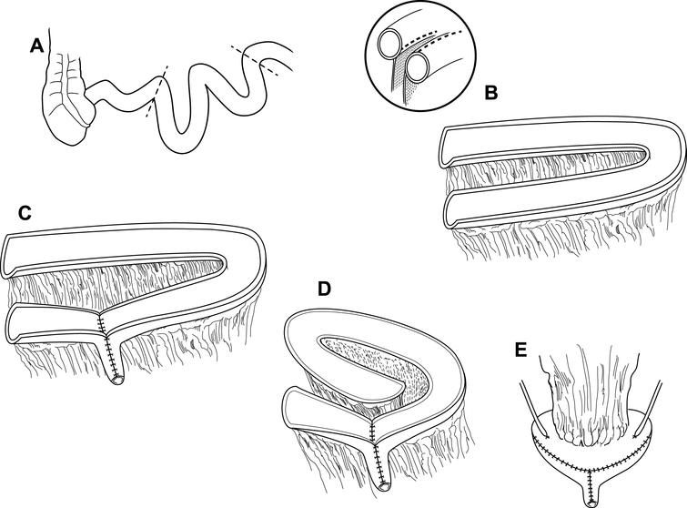 "Modified VIP neobladder construction. (A) A 40–50 cm distal ileal segment is chosen approximately 15–20 cm from the ileocecal valve and (B) is folded into a sideways ""U"" configuration. The small bowel is opened longitudinally, close to the mesenteric border instead of along the true anti-mesentery. (C) The distal segment of bowel is tubularized into the neourethra and (D) the proximal segment is folded into a spiral configuration with adjacent bowel sutured together to approximate the new posterior wall. (E) The pouch is folded onto itself in a cephalad to caudad fashion and both ureters are reimplanted anteriorly on their respective sides."