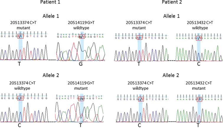Phasing of variants 20513374 and 20514119 in Patient 1 and variants 20513374 and 20513432 in Patient 2. Sanger sequencing traces shown for patient 1: allele 1 mutant 20513374 and wildtype 20514119 vs. allele 2 wildtype 20513374 and mutant 20514119. Patient 2: allele 1 mutant 20513374 and wildtype 20513432 vs. allele 2 wildtype 20513374 and mutant 20513432.