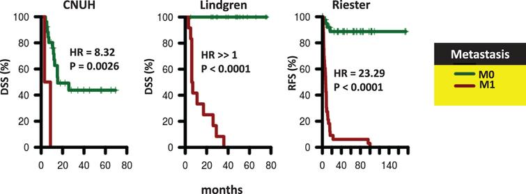 Survival of patients according to presence of distant metastases. Kaplan-Meier curves were generated for patients with M0 (green) and M1 (red) tumors in CNUH (N=28), and Lindgren (N=32), and Riester (N=78) cohorts. The hazard ratio (HR) for patients with M1 tumors compared to patients with M0 tumors and the corresponding log-rank P value is reported. Abbreviations: DSS, disease-specific survival; RFS, recurrence-free survival.