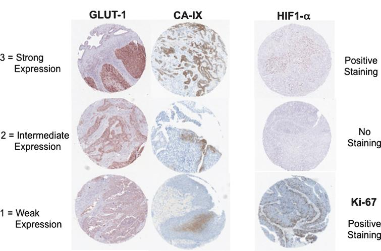 Expression status of hypoxia related markers in bladder cancer tissue. Immunohistochemistry staining of HIF1a, CA-IX, GLUT-1 and Ki-67 in paraffin-embedded TMA sections of bladder cancer tissues.