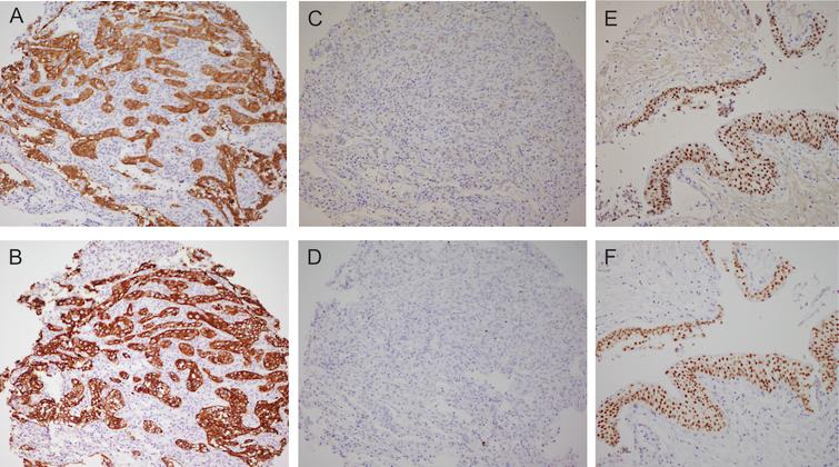 Basal/Squamous-like (BASQ) tumors are characterized by strong expression of KRT5/6 (A) and KRT14 (B) and low or undetectable expression of FOXA1 (C) and GATA3 (D). By contrast to them, normal urothelial cells display strong expression of FOXA1 (E) andGATA3 (F).