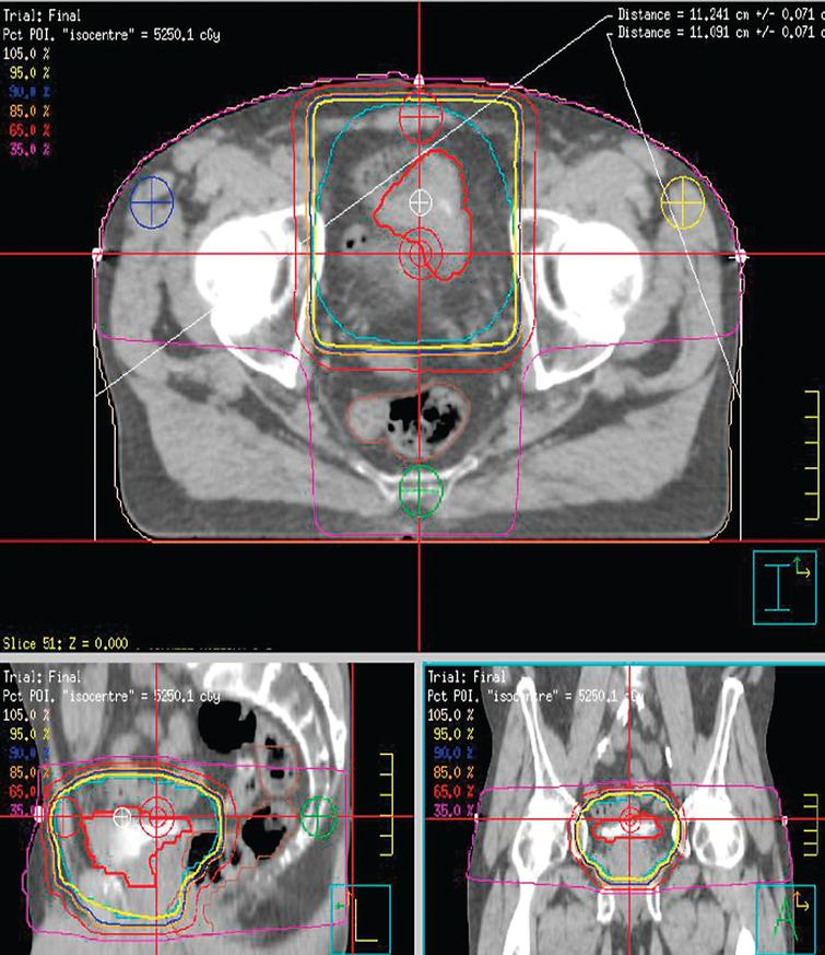 A typical 3 dimensional conformal radiotherapy plan for treating bladder cancer.