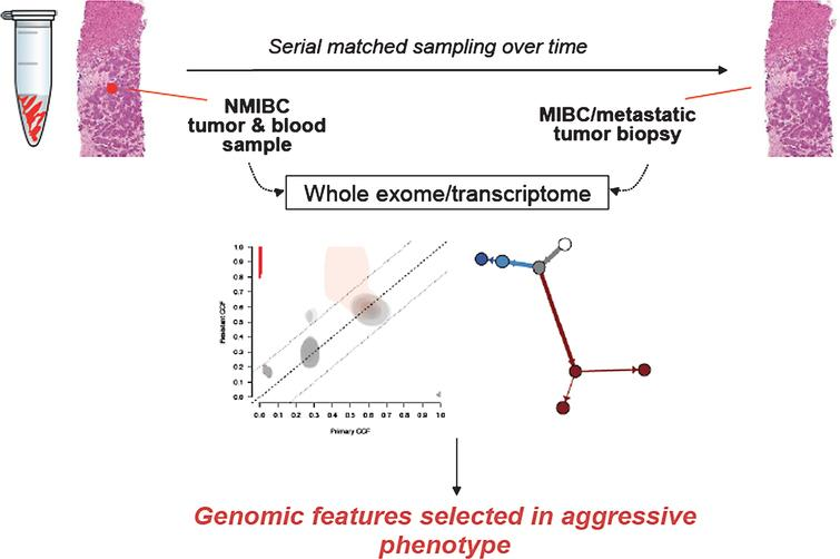 Schematic for longitudinal tumor sampling of NMIBC to MIBC progression. This approach may inform genomic features of high risk disease and identify new therapeutic targets.