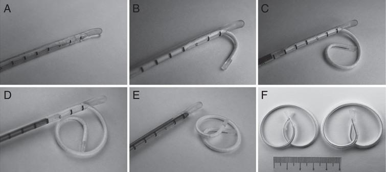 Deployment of LiRIS® through a specialized catheter as demonstrated in (A) through (E). Two devices containing different doses of the same medication are shown in (F) with a 5 cm ruler for scale. Reproduced with permission [24].