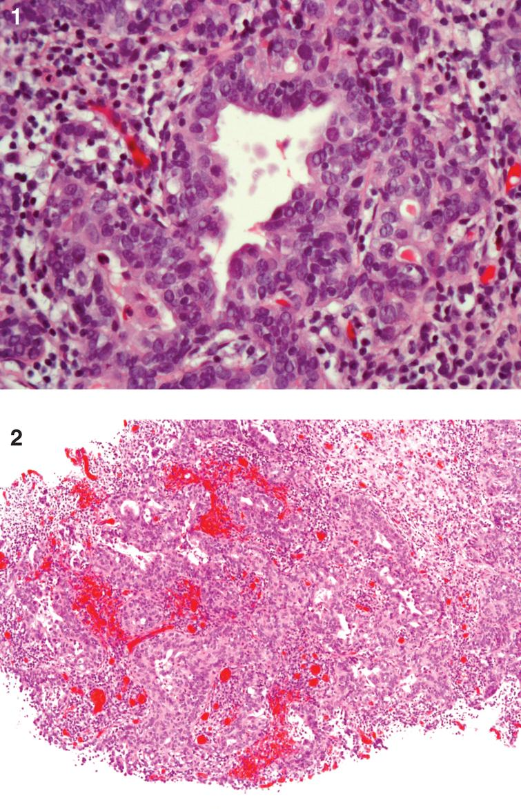 This is ahigh grade urothelial carcinoma (UC) with adenocarcinoma which is invasive into the lamina propria. Muscularis propria is present and not involved with cancer. There is an insitu component as well as an invasive component which is gland forming without mucin production. The tumor is GATA 3 positive (for UC). The tumor is >50% positive for Ki67.