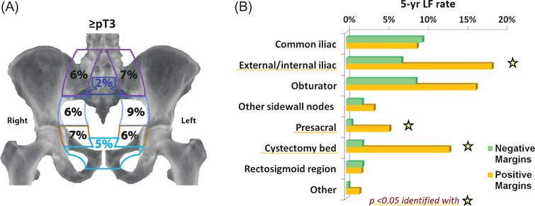 (A) Five year cumulative incidence of local-regional failure by location of recurrence for stage ≥pT3 patients. Local-regional failures were defined as recurrences in the pelvic lymph nodes or soft tissues before or within 3 months of evidence of distant failure. The pelvic sidewall nodes are the common iliac, external/internal iliac, and obturator nodes (from top to bottom). The structures in the middle of the pelvis are the presacral nodal region (superiorly) and the cystectomy bed. (B) Five year cumulative incidence of local-regional failure by site for ≥pT3 patients with positive vs. negative surgical margins.