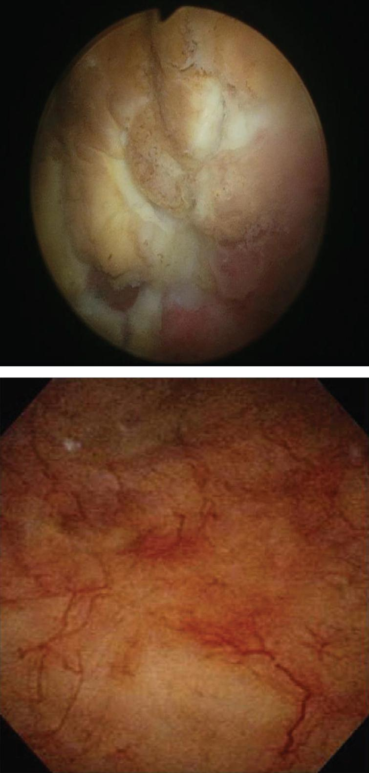 Cystoscopic images: Mitomycin-C induced cystitis pre- and post-treatment (top and bottom respectively) utilizing the algorithm.