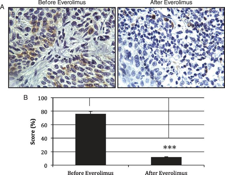 Expression of pS6 as measured of mTOR activity. (A) Immunohistochemistry was used to detect the levels of pS6 in paraffin-embedded tissues of patients treated with Everolimus. (B) Quantification of the immunohistochemistry data in 3 patients with residual disease (n = 3) revealed a significant decrease in pS6 expression as observed in tumors treated with Everolimus (p = 0.021). Treatment of Everolimus started 4 weeks before the combined gemcitabine/radiotherapy treatment. Everolimus was continued during the chemoradiation regimen and for one extra month after the concurrent chemoradiation regimen has been completed.