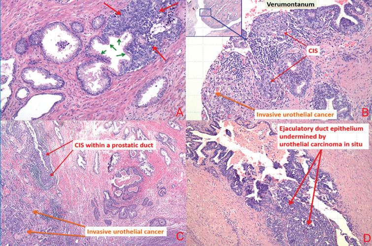 (a) Carcinoma in situ urothelial cells invading prostatic glands (small green arrows represent secretory cell and large red arrows represent urothelial carcinoma in situ). (b) Urothelial carcinoma in situ prostatic urethra and ducts and invasive urothelial carcinoma at the level of verumontanum. (c) Urothelial CIS involving prostatic duct and invasive urothelial carcinoma. (d) Urothelial carcinoma in situ involving ejaculatory duct.