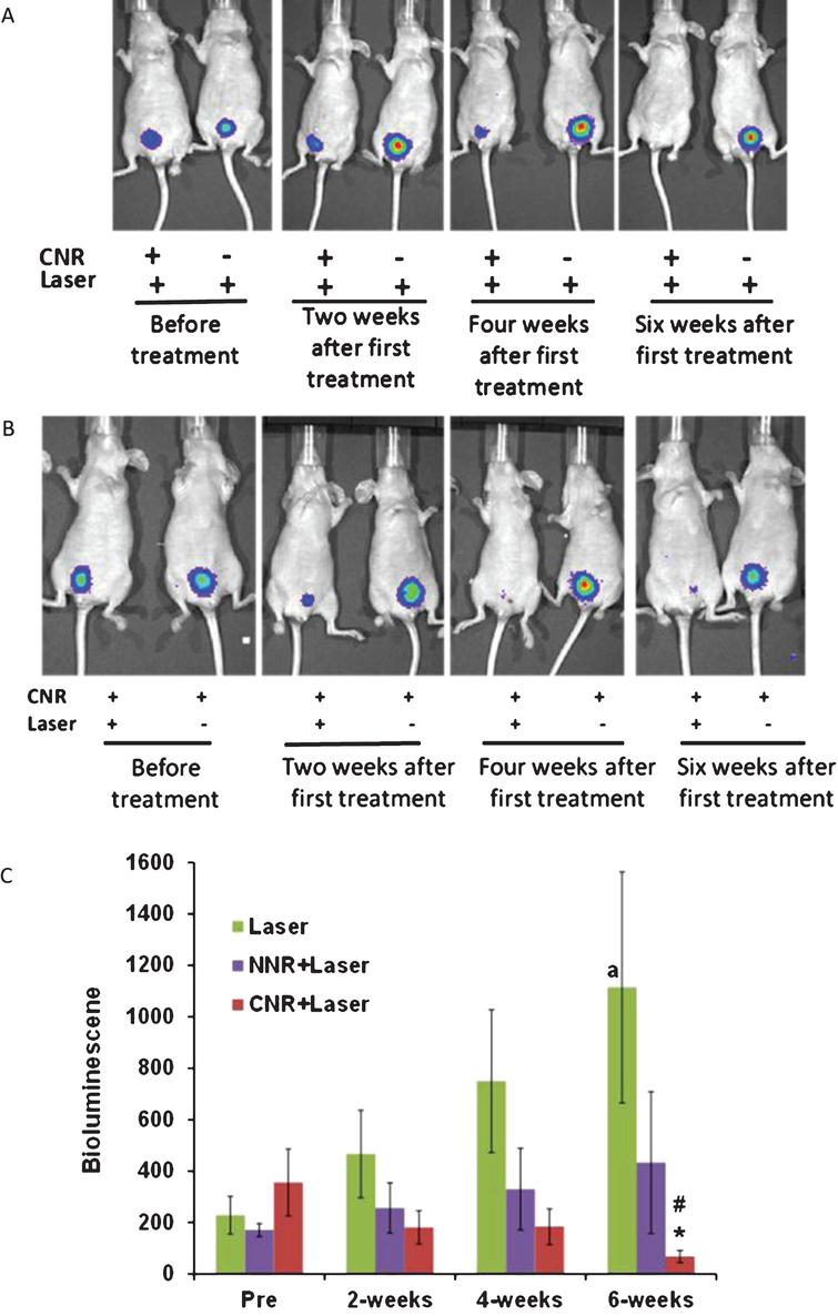 In vivo Photothermal effects of nanorods. Representative mice with positive luciferase images were intravesically treated with CNR in conjunction with external delivery of NIR light once per week for four weeks, using the optimized safe dose of laser treatment (power density of 2.1 W/cm2 for 30 seconds). The presence of viable tumor cells was tracked by bioluminescent imaging weekly for at least six weeks. Representative images show significant anti-tumor effect of CNR followed by NIR laser as compared with the negative controls with and without CNR followed by laser treatment (Fig. 4A) and CNR treatment with and without laser (Fig. 4B). Figure 4C shows the effects of treatments on tumor growth by luminescence units. *p = 0.035 effect of CNR+Laser treatment compared to laser treatment alone at 6 weeks. #p≤0.04 and ap = 0.046 compared to pre-treatment. NNR = naked nanorods, CNR = conjugated nanorods.