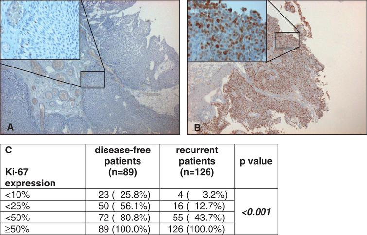 Examples of low (here <10%, A) and strong (here ≥50%, B) staining of Ki-67 under 5 fold and 40 fold (left above) magnification. Correlation of Ki-67 expression with disease-free and recurrent patients by cumulative numbers and rates (C).