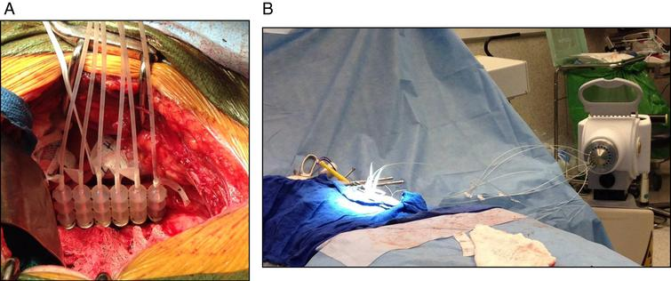 Following resection, (A) the area of interest is isolated from surrounding bowel and ureter, and (B,C) a Freiberg flap is placed with flexible beads and 6Fr catheters connecting to the afterloader.