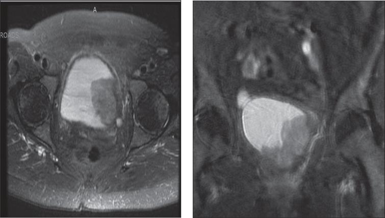 T2 weighted contrast enhanced MRI in axial and coronal views demonstrating bladder tumor appearing to extend into the left perivesical fat.