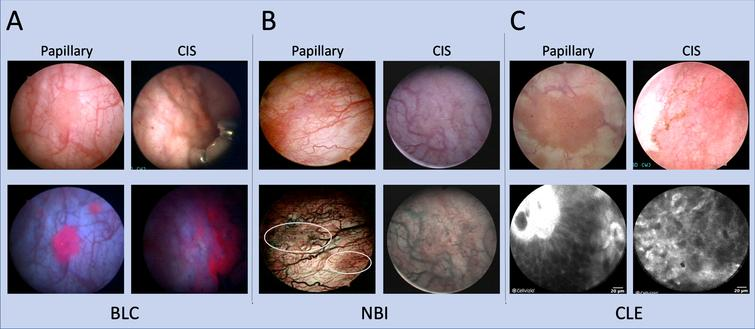 Imaging modalities for improved bladder tumor detection. Papillary and CIS bladder lesions visualized with BLC, NBI, and CLE with corresponding white light images. (A) Positive, red fluorescence of small, satellite papillary tumors seen on BLC that may be missed on WLC. For CIS, red fluorescence also noted on BLC of what appears to be normal urothelium on WLC. (B) NBI improves visualization of aberrant tumor vasculature. Two papillary tumors are more easily visualized on NBI (encircled). For CIS detection, a patch of erythema is more pronounced under NBI compared to a relatively normal appearing urothelium on WLC. CIS images for NBI obtained with permission from [80]. (C) CLE of papillary tumors and CIS provide microscopic detail that can augment macroscopic imaging. A fibrovascular stalk may be visualized as noted in the top left of the papillary CLE example. CIS is notable for a disorganized architecture with pleomorphic cells and indistinct cellular borders.