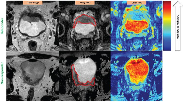 ADC heterogeneity in the bladder tumor of a responder (upper) vs. a non-responder (lower). Red contours illustrate the ROIs placed on the tumors. The color scale column is given on the right. ADC values are scaled with the color spectrum from the lowest ADC at the bottom to the highest ADC at the top of the column. Please note that higher micro-cellularity underlies lower ADC in tumor tissues. Responder (stage pT1N0): U = 0.08; E = 3.81; Non-responder (stage pT3bN0): U = 0.06; E = 4.12.