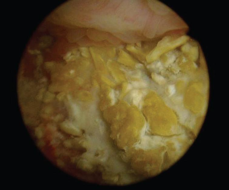 Endoscopic view of the calcified urothelium in March 2017.