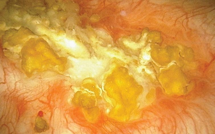 Office endoscopic photo of the calcified surface on the posterior wall of the bladder, Oct 2017.
