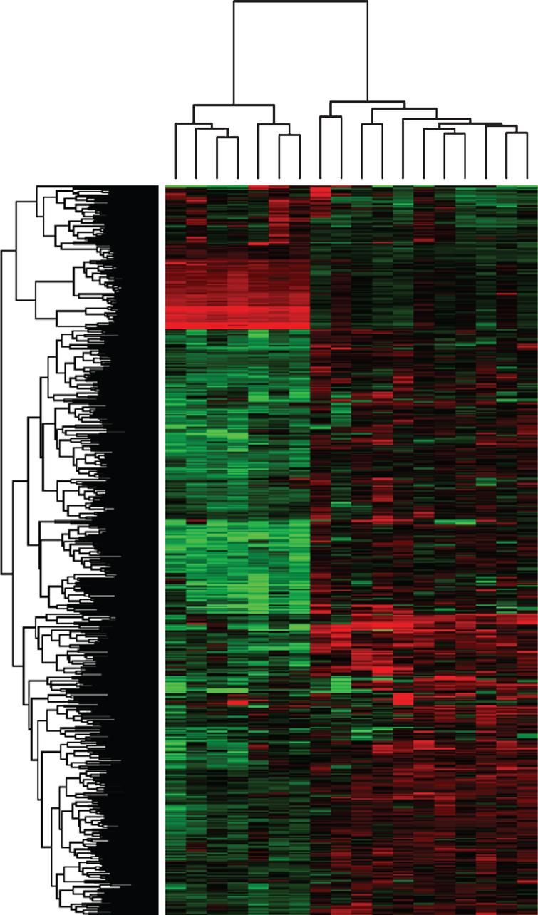 Clustering of differentially expressed basal and luminal genes. Gene expression profiling was performed (Canine Genome Array 2.0 Affymetrix, Santa Clara, CA). Microarray data were analyzed for canine normal bladder tissues (n=4) and compared to canine InvUC (n=18) using GeneSpring GX 13.1.1 (Agilent Technologies, Santa Clara, CA) and recently updated annotations by Affymetrix. Differentially expressed genes (t-test, p corr 0.05, 2FC) were selected and clustered according to basal and luminal patterns reported in human InvUC [6]. Genes clustered in two distinct groups with seven tumor samples segregating as basal (left cluster), and 11 tumor samples as luminal (right cluster).
