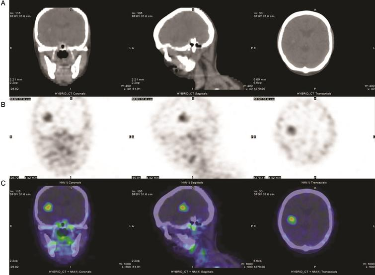 111In-J591 single-photon-emission tomography (SPECT) in a patient with metastatic bladder urothelial carcinoma (UC). From left to right: coronal, sagittal and transaxial views from SPECT/CT obtained 72 hours after the administration of 5.55 mCi In-111 DOTA J-591. (A) CT images of the head showing a focal hyperintense lesion with surrounding edema in the right hemisphere. (B) SPECT images of the head in grayscale and (C) in color scale, showing multiple foci of increased uptake in the brain, skull, mandibles and cervical nodes.