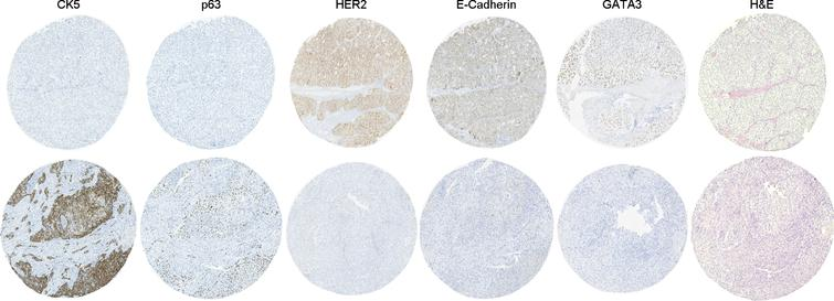 Representative images of routine hematoxylin and eosin (H&E) staining and intercore heterogeneity in five markers (CK5, E-Cadherin, GATA3, HER2 and p63) in two different cores from the same tumor.