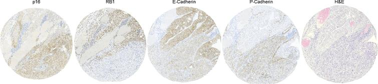 Representative case showing intracore heterogeneity. Routine hematoxylin-eosin staining (H&E) and four markers (E-Cadherin, p16, P-Cadherin and RB1) are shown.