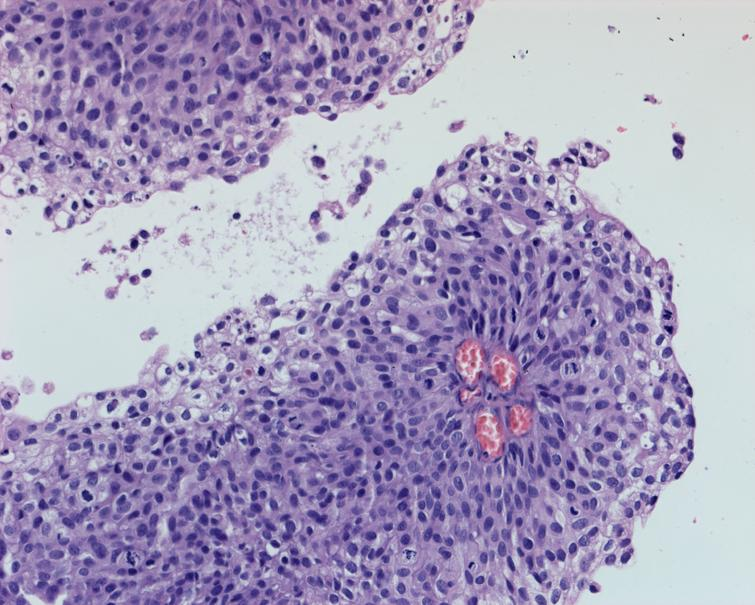 High grade urothelial carcinoma.