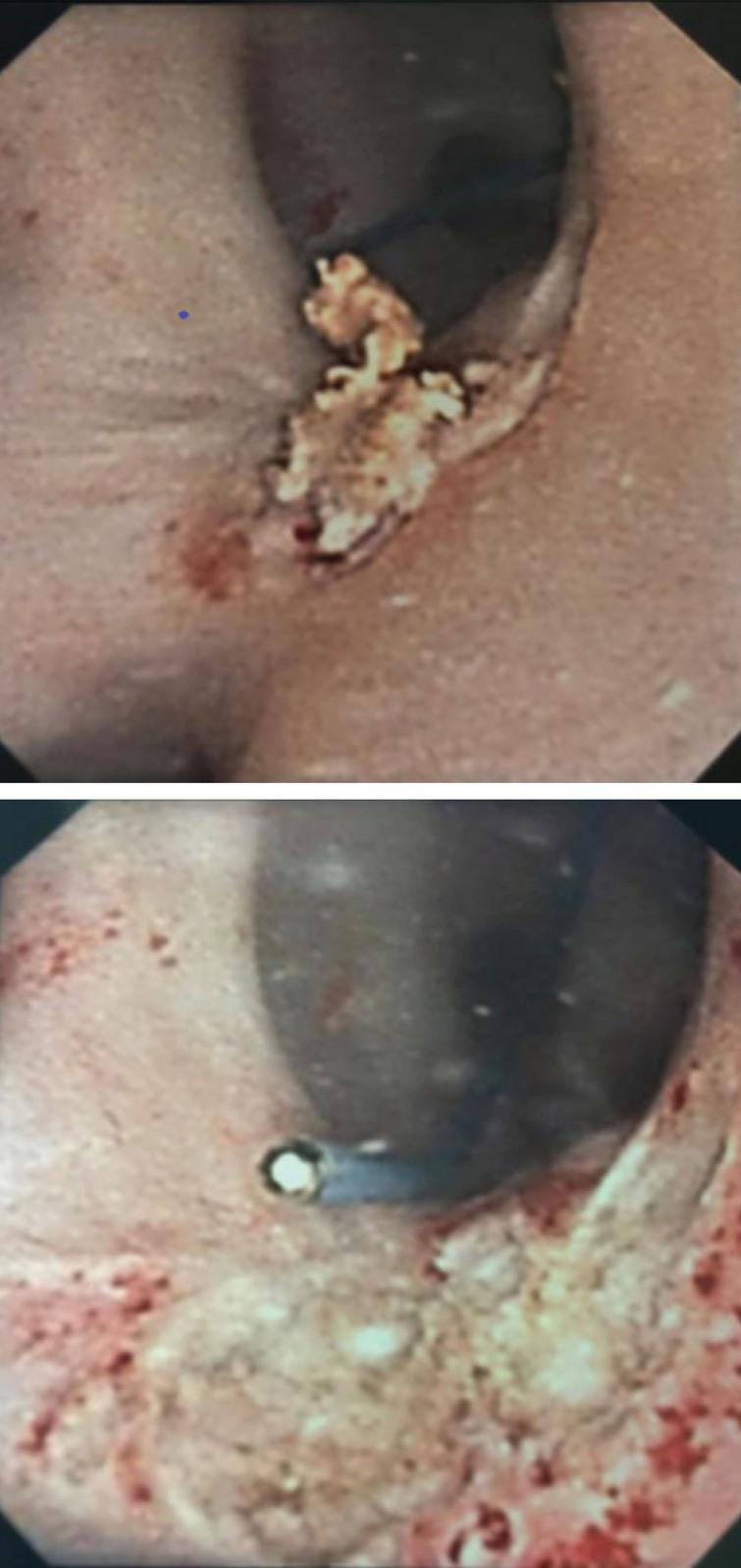 Top image displays small renal pelvis tumor captured on ureteroscopy. Following several weeks of intracavitary MitoGel demonstrated chemoablation with necrotic tumor and no evidence of viable cancer.