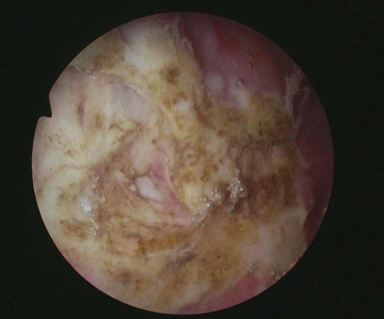 Post TUR tumor bed.