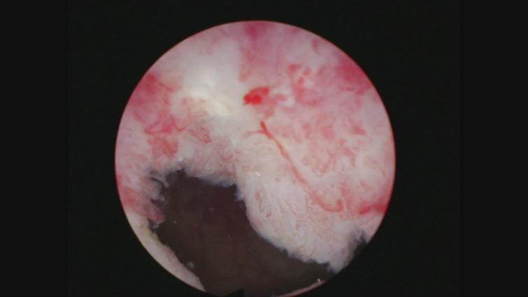 Papillary tumor left bladder neck.