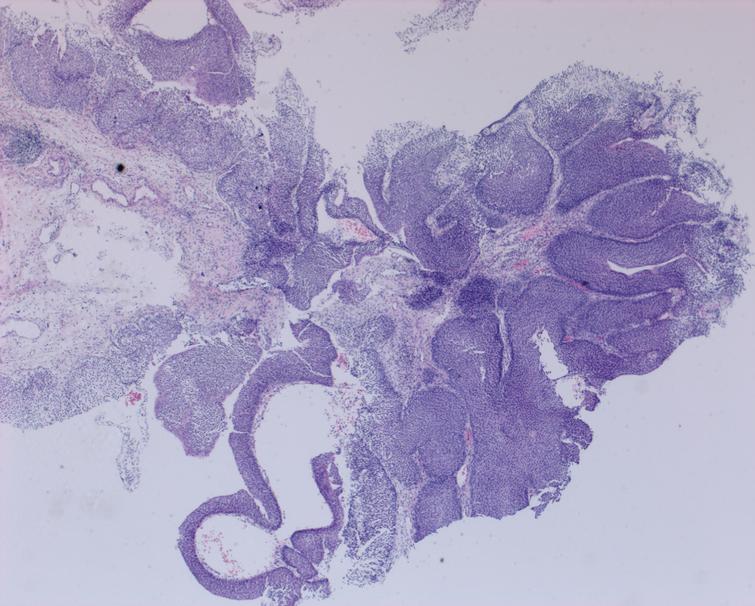 Low grade Ta bladder cancer. No invasion.