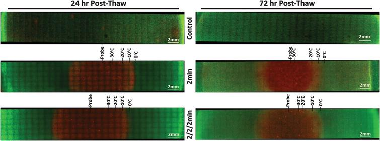 Fluorescent Micrographs of the SCaBER-TEMs Following Single and Double 2min Freezes. At 24hr (A) and 72hr (B) post-thaw, unfrozen controls, single freeze, and double freeze TEMs were probed with Calcein-AM (green, live) and Propidium Iodide (red, dead) and visualized using fluorescent microscopy to determine the extent of cell death. Images were stitched together from a 6×30 set of overlapping images using a 10X objective. Measurements were made using the Zeiss ZEN software and temperatures from the corresponding IR images were mapped to the micrographs.
