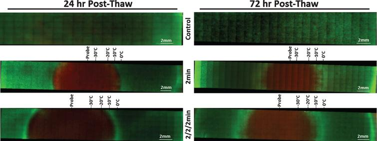 Fluorescent Micrographs of the UMUC3-TEMs Following Single and Double 2min Freezes. At 24hr (A) and 72hr (B) post-thaw unfrozen controls, single freeze, and double freeze TEMs were probed with Calcein-AM (green, live) and Propidium Iodide (red, dead) and visualized using fluorescent microscopy to determine the extent of cell death. Images were stitched together from a 6×30 set of overlapping images using a 10X objective. Measurements were made using the Zeiss ZEN software and temperatures from the corresponding IR images were mapped to the micrographs.