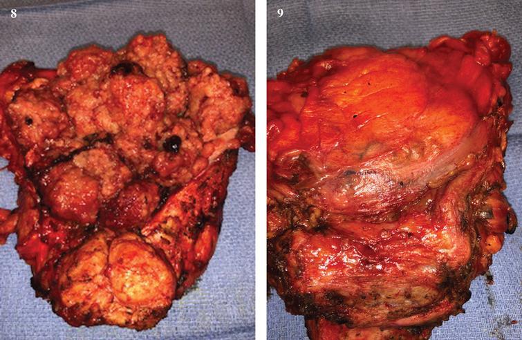 Open bladder/prostate, anterior and posterior.