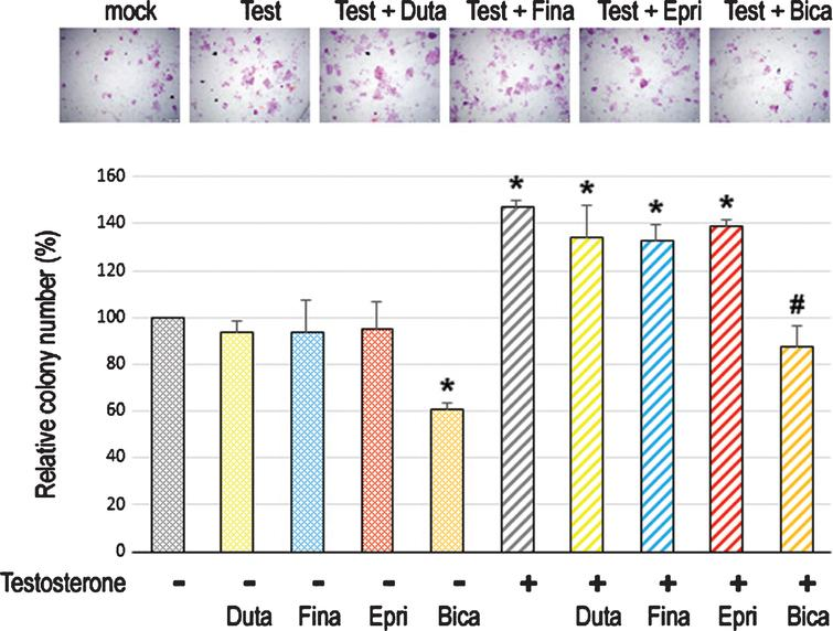 Effects of 5α-RIs on neoplastic transformation of urothelial cells determined by colony-forming ability. Clonogenic assay in SVHUC-AR cells exposed to MCA, subcultured for 6 weeks in medium containing 5% FBS as well as ethanol (mock), dutasteride (Duta; 100nM), finasteride (Fina; 500nM), epristeride (Epri; 5μM), bicalutamide (Bica; 5μM), and/or testosterone (Test; 10nM), and further incubated for 2 weeks without 5α-RI/testosterone treatment. The number of colony consisting of ≥20 cells is presented relative to that of mock-treated cells. Each value represents the mean (+SD) from three independent experiments. *P<0.05 (vs. mock treatment). #P<0.05 (vs. testosterone treatment).