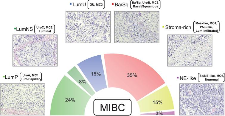 Micrographs of one representative hematoxylin & eosin stained tumor for each consensus subtype is shown (200×). The figure exemplifies the typical histomorphological patterns for each consensus subtype: Luminal-papillary, relatively organized urothelial histology; LumNS, less organized urothelial histology; LumU, severely disorganized urothelial histology; Ba/Sq, squamous differentiation; Stroma rich, Infiltrative growth pattern with stromal reaction; NE-like, Neuroendocrine differentiation. While the neuroendocrine tumors have neuroendocrine molecular features, they may not have neuroendocrine histology. Percentages show the proportion of MIBC tumors belonging to each subtype based on data in Kamoun et al. (2019). In addition to the consensus subtype nomenclature, subtypes from other classification systems (Lund, CIT-Curie, MDA, and TCGA) enriched in each of the consensus subtypes are shown in brackets.