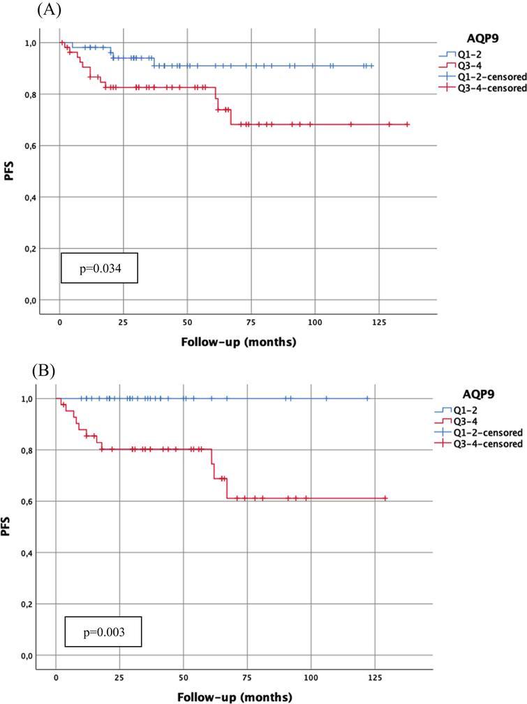 Kaplan-Meier analysis of AQP9 mRNA-expression (cut-off: median expression (quartile 1–2 (Q1–2) vs. quartile 3–4 (Q3–4)) with regard to progression-free survival (PFS) in the total cohort (A; n=109; Q1–2:54 patients, 4 progressions; Q3–4:55 patients, 12 progressions) and in patients with WHO1973 Grade 3 tumors (B; n=76; Q1–2:34 patients, 0 progressions; Q3–4:42 patients, 11 progressions). p-value <0.05 indicates significant results.