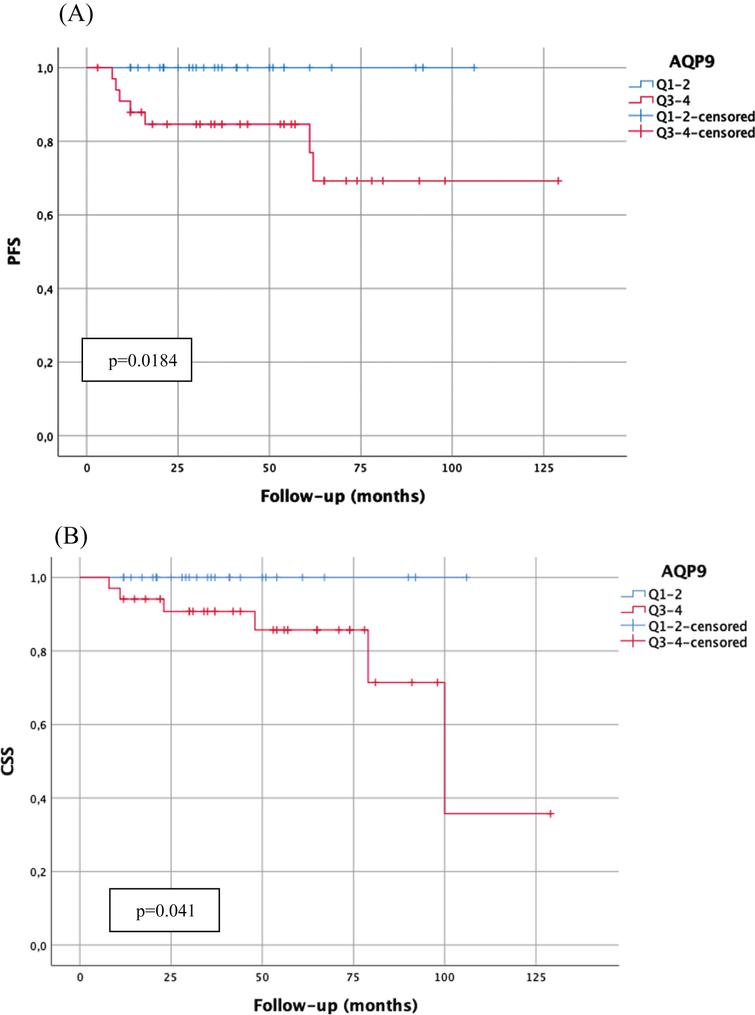 Kaplan-Meier analysis of AQP9 mRNA-expression (cut-off: median expression (quartile 1–2 (Q1–2) vs. quartile 3–4 (Q3–4)) in WHO1973 G3 tumors with bladder-sparing approach (n=63) with regard to progression-free survival (A; PFS; Q1–2:29 patients, 0 progressions; Q3–4:34 patients, 7 progressions) and carcinoma-specific survival (B; CSS; Q1–2:29 patients, 0 cancer-related death; Q3–4:34 patients, 6 cancer-related deaths). p-value <0.05 indicates significant results.
