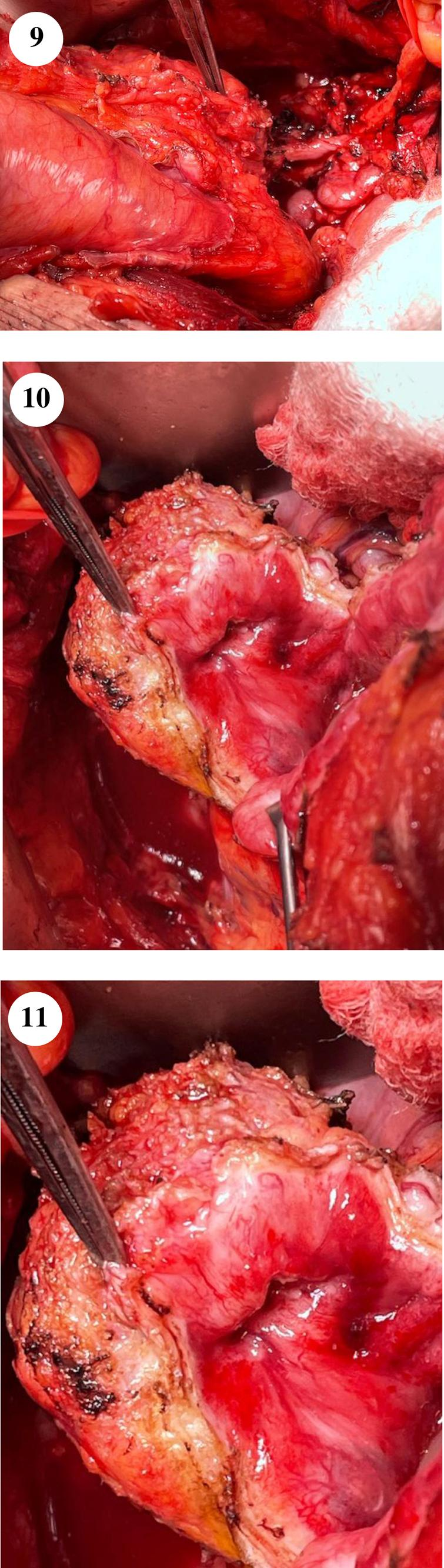 The firm mass is seen in figure 9 with the instrument pointing to it. The mobilized right distal ureter is seen proximal to the bladder. Figures 10–11 show the tumor containing bladder diverticulum.