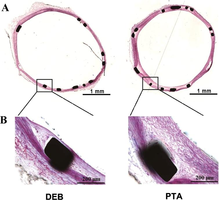 Representative histological images at low-magnification (100x, upper image) and high power magnification (200x, lower image) 28 days after balloon treatment. DEB could inhibit neointimal hyperplasia in contrast with control. Sections shown are stained with hematoxylin and eosin (H&E). (Colors are visible in the online version of the article; http://dx.doi.org/10.3233/BME-151551.)