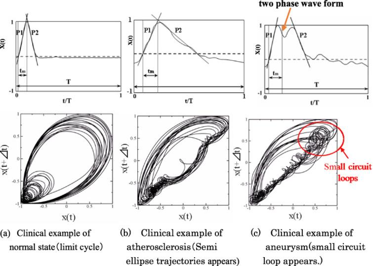 Pulsatile velocity and its attracter analysis of trajectories of blood vessel walls under pulsatile pressure conditions during systolic process. T is periodic time. t is time. Δt = 30 [ms]. X (t) is expansion velocity of blood vessel wall during systolic process.
