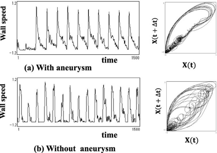 Original wave form and its trajectory by attracter analysis (A clinical example of not being feasible to judge the existence of aneurysm by its attracter analysis of the trajectory alone.)