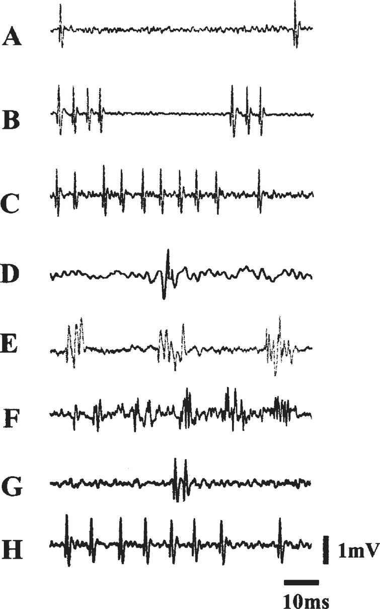 Electrophysiological Activities Over the Course of 99 Days Postlesion. Samples of spontaneous electrical activity in VMN before and after lesions. (A), (B), and (C) were recorded from VMN before lesions: (A) A slow and irregular discharge pattern; (B) a phasic firing pattern; (C) a fast firing pattern. (D–H) were recorded after lesions: (D) was recorded at 42 days postlesion; (E) was recorded 64 days postlesion. Note that (D) and (E) lack complete form of a discharge characteristic of an extracellular recording. (E) and (F) exhibit both normal and abnormal forms of discharge; (G) and (H) exhibit normal forms of discharge from birds that survived 99 days. Courtesy of Cheng et al. J Neurobiol. 2004; 60: 197-213.